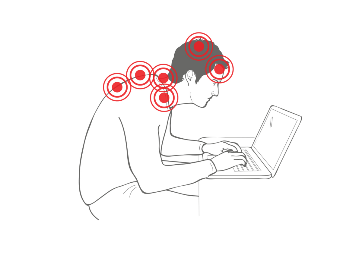How bad posture causes neck pain and headaches